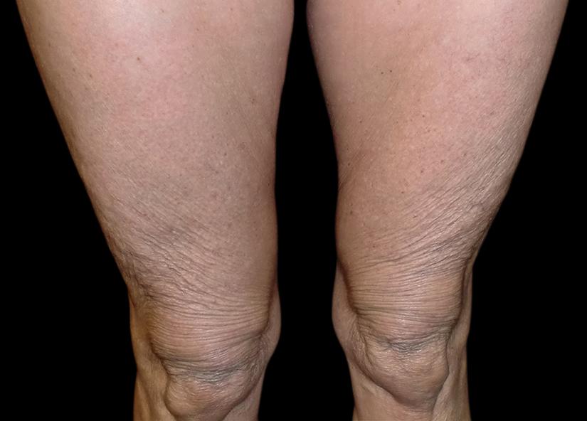 Legs_Exilis-Leg-Tight-after-Dr-Lain-7-13