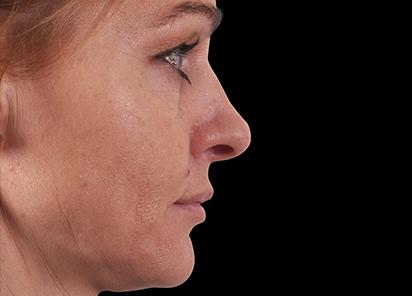 Exilis_Ultra_360_PIC_109-Before-face-neck-female-BTL-Aesthetics_412x296px