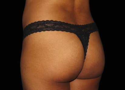 Emsculpt_PIC_036-After-buttock-female-Chris-Bailey-Ovation-Med-Spa-4TX__412x296px