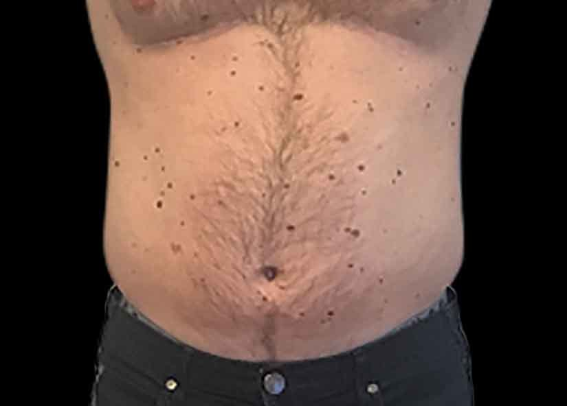 Abdomen_BTL_Emsculpt_PIC_007-Before-male-Carolyn-Jacob-MD_825x592px