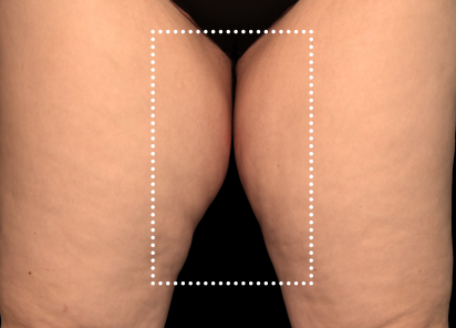 Emsculpt_Neo_PIC_063-before-inner_thighs-female-Diane-Duncan-MD_412x296px