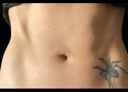 Emsculpt_Neo_PIC_048-after-abdomen-female-BTL-Aesthetics_412x296px