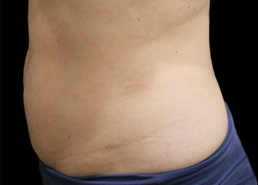 Abdomen_BTL_Vanquish_ME_PIC_027-After-abdomen-female-Suneel-Chilukuri-MD-2TX_825x592px