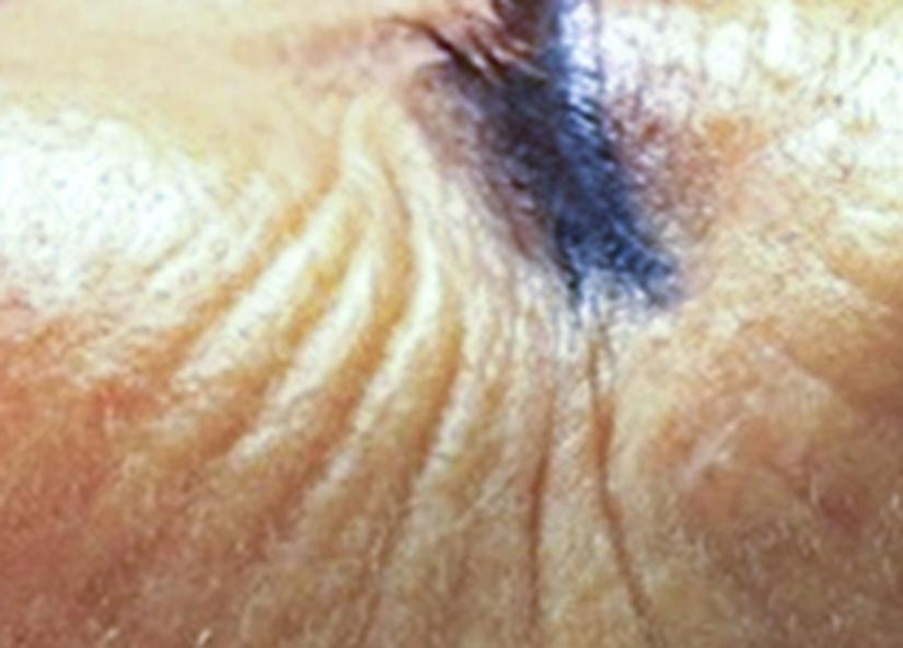 Head_Exilis_PIC_031-Before-face-female-Rankin_825x592px