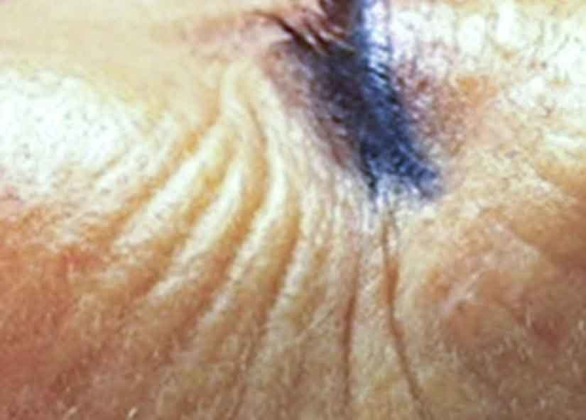 Exilis Before Picture Face Female