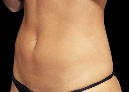 Emsculpt_PIC_011-After-abdomen-female-Suneel-Chilukuri-MD-4TX__412x296px