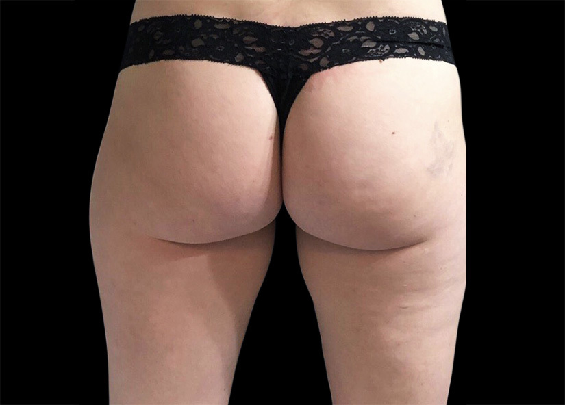 Emsculpt_PIC_092-after-buttock-female-btl-aesthetics-4W-4TX_825x592px