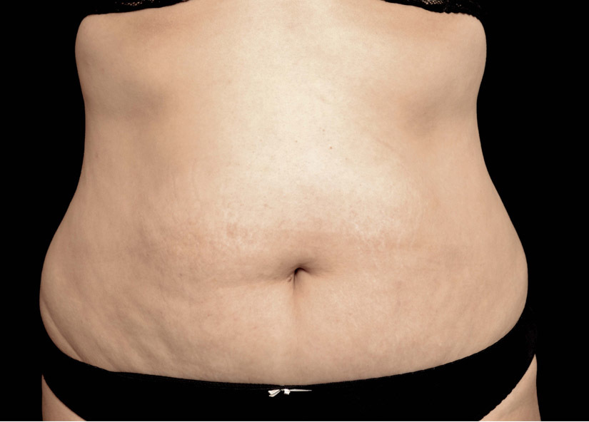 Abdomen_Exilis_Ultra_PIC_001-After-abdomen-female-4TX1