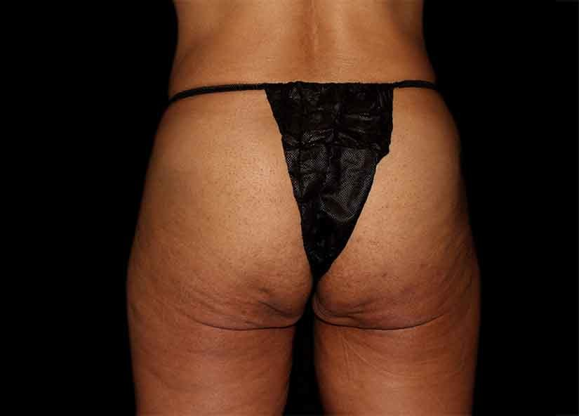 Buttocks_Emsculpt_PIC_046-before-female-Ovation-med-spa_825x592px