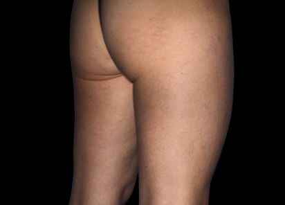 Emtone_PIC_007-After-buttock-female-Marianno-Busso-MD-4TX_412x296