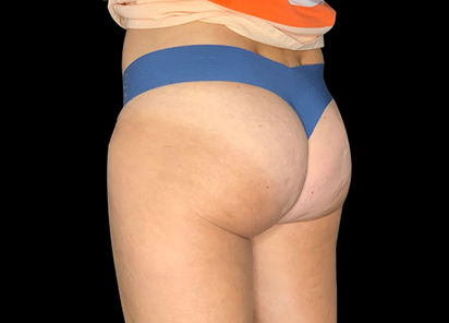 Emtone_PIC_014-After-buttock-female-PDC-Heather_Fitzgerald-4TX_412x296
