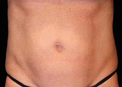 Emsculpt_neo_PIC_039-after-abdomen-female-Julene-Samuels-MD-6M_412x296px