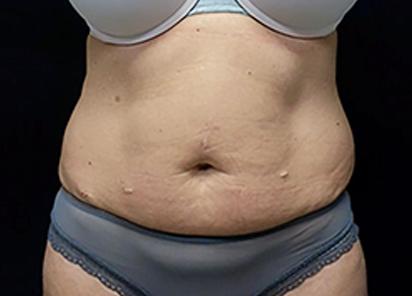 Emsculpt_PIC_034-Before-abdomen-female-David-E-Kent-MD__412x296px