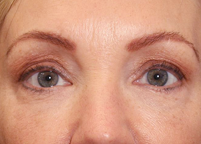 Exilis_Ultra_360_PIC_103-After-eyes-female-Suneel-Chilukuri-MD-2TX_412x296px
