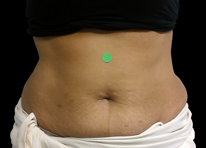 BTL_Cellutone_PIC_012-After-abdomen-female-Suneel-Chilukuri-MD-4TX_412x296