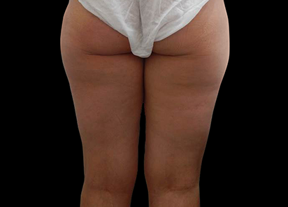 BTL_Exilis_Elite_X-Wave_PIC_001-After-buttocks-female-Simal-Soin-6TX_412x296