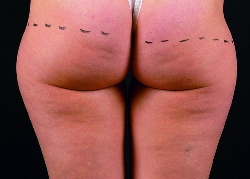 Buttocks_X-Wave_PIC_006-Before-buttocks-female-btlaesthetics_825x592px