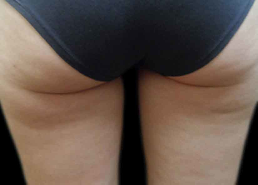 Buttocks_Before-6_825x592_Exilis