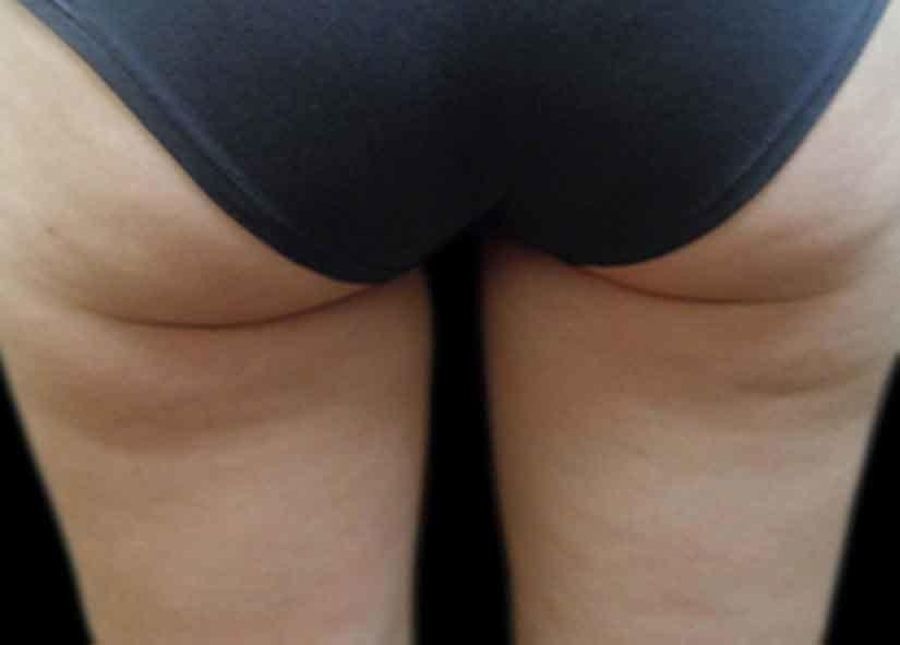 Buttocks_Before-6_825x592_Exilis