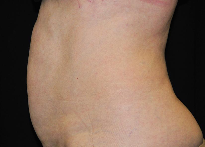 Abdomen_BTL_Vanquish_ME_PIC-302-Before-abdomen-female-Anna-Pare-MD-825x592px