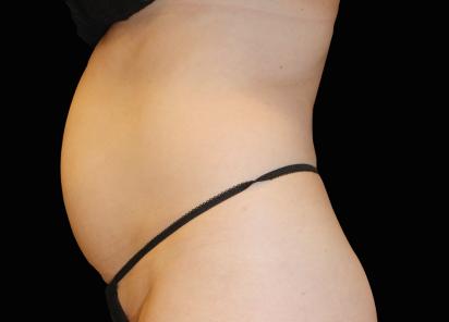 Emsculpt_neo_PIC_007-before-abdomen-female-Julene-Samuels-MD__412x296px