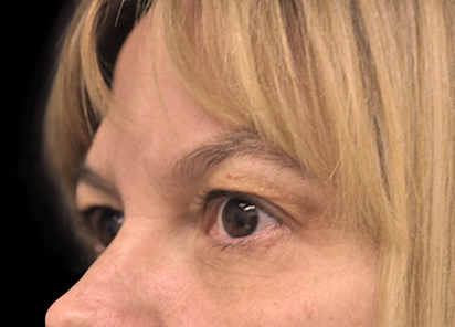 BTL_Exilis_Ultra_PIC_009-After-eyes-female-Jason-Lupton-MD-1TX_412x296px