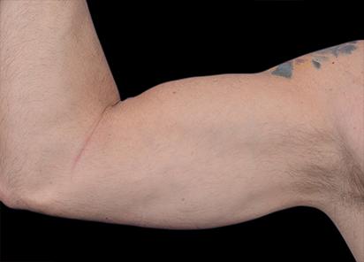 Emsculpt_PIC_098-before-biceps_male-Barry-DiBernardo-MD-4TX_412x296
