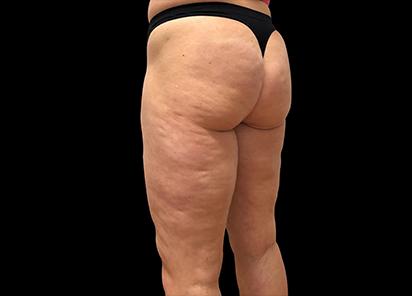 Emtone_PIC_027-Before-buttock-female-Giulia-Bianchi_412x296
