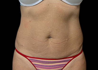 Emsculpt_PIC_034-After-abdomen-female-David-E-Kent-MD-8TX__412x296px