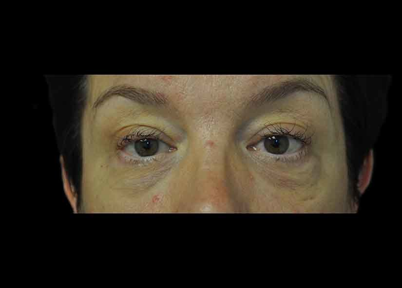Head_BTL_Exilis_Ultra_PIC_010-After-eyes-female-Jason-Lupton-MD-2TX_825x592px