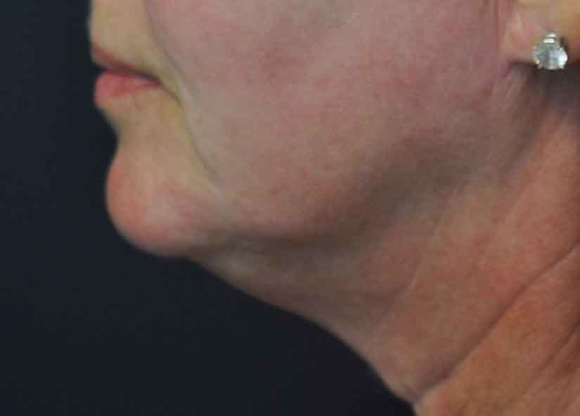 Neck_BTL_Exilis_Ultra_PIC_016-Before-neck-female-Jason-Lupton-MD_825x592px