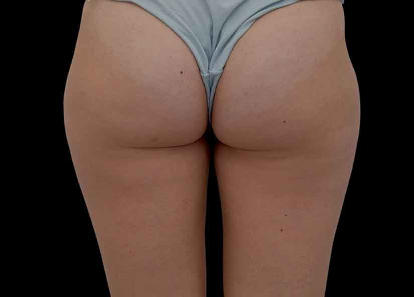 Buttocks_BTL_Unison_PIC_006-After-female-BTL-aesthetics-4TX_825x592