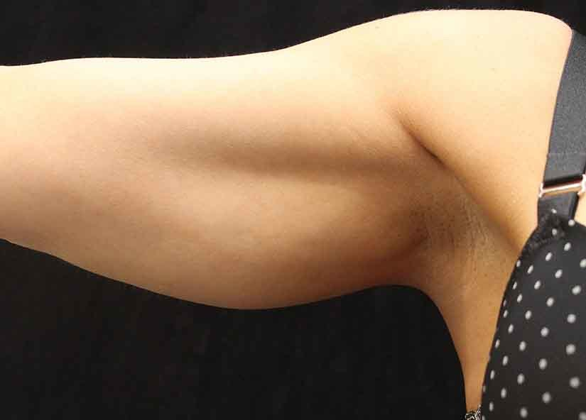 Arms_Exilis_Ultra_PIC_022-After-arms-female-Suneel-Chilukuri-MD-4TX_825x592px