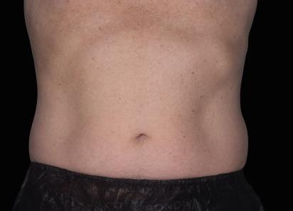 Emsculpt_neo_PIC_043-after-abdomen-male-David-Kent-MD-6M__412x296px