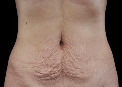 Emtone_PIC_002-Before-abdomen-female-Klaus-Fritz-MD_412x296