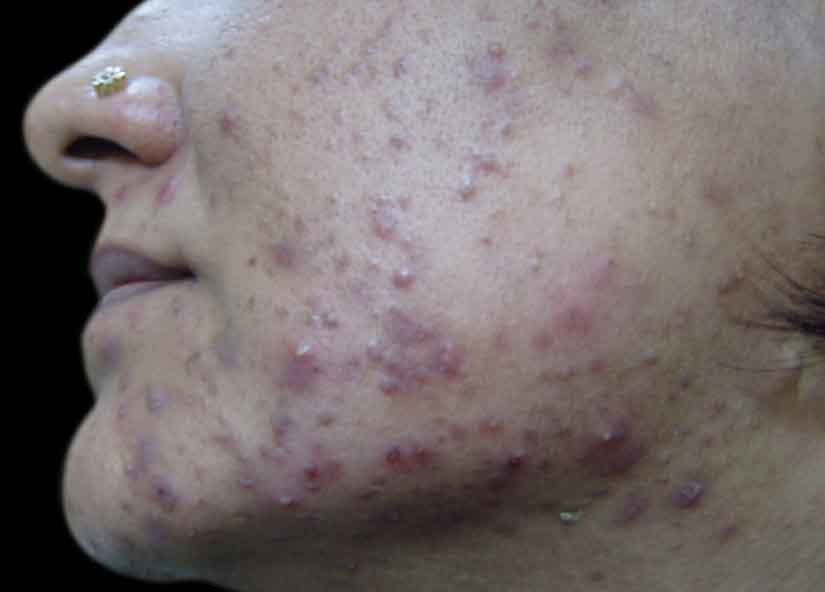 Head_BTL_Exilite_PIC_005-Before-acne-female-Krishnakant-B-Pandya-Dr