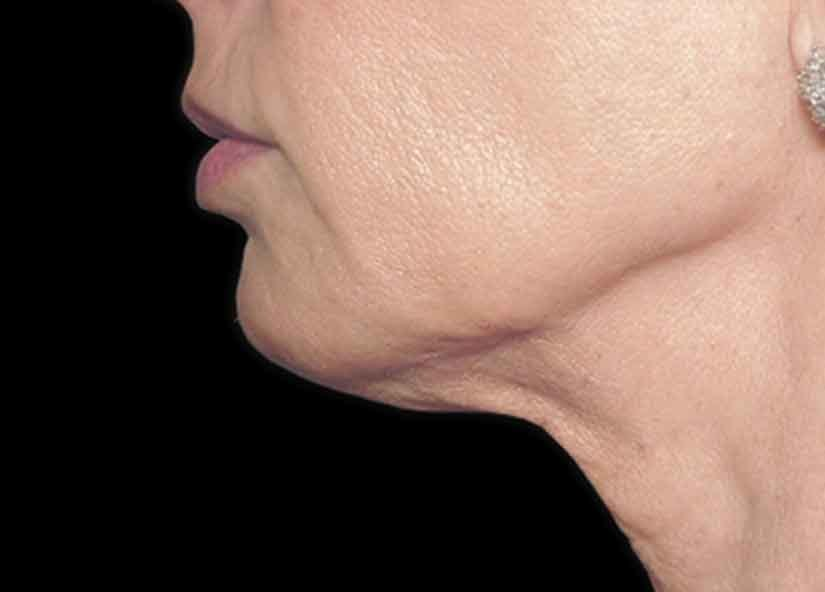 Neck_Protege_Elite_PIC_003-After-neck-female-Tenore-4TX_825x592px