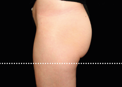 Emsculpt_PIC_020-After-buttock-female-Suneel-Chilukuri-MD-4TX__412x296px