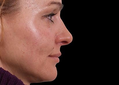 Exilis_Ultra_360_PIC_109-After-face-neck-female-BTL-Aesthetics-4TX_412x296px