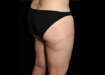BTL_Exilis_Elite_X-Wave_PIC_002-After-buttocks-female-Suneel-Chilukuri-2TX_412x296
