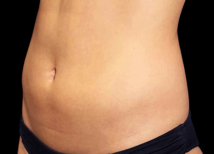 Abdomen_BTL_Emsculpt_PIC_011-Before-female-Suneel-Chilukuri-MD_825x592px