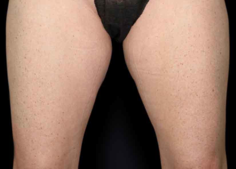 Legs_BTL_Vanquish_Flex_PIC_012-Before-legs-female-McDaniel-825x592px