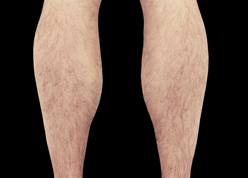 Emsculpt_PIC_083-Before-calves-male-Reminder-Saluja-MD_825x592
