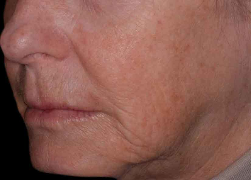 Head_Exilis_PIC_030-Before-face-female-Vasily_825x592px
