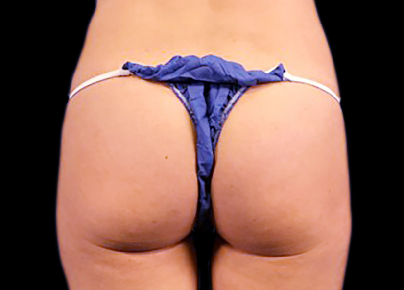 Emsculpt_PIC_089-after-buttock-female-mark-deuber-md-12W-4TX_825x592px