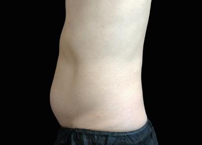 Emsculpt_neo_PIC_022-after-abdomen-male-David-Kent-MD-3M__412x296px