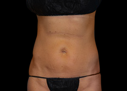 BTL_Vanquish_ME_PIC_113-After-abdomen-female-Amir-Moradi-MD-4TX_412x296
