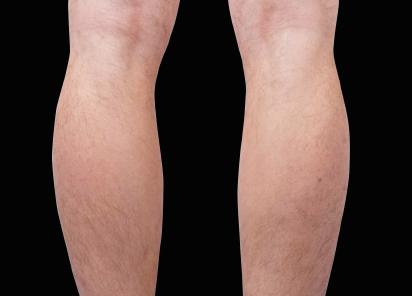 Emsculpt_neo_PIC_030-before-calves-male-Bruce-E-Katz-MD__412x296px