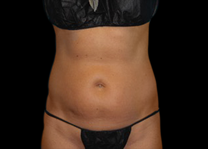 BTL_Vanquish_ME_PIC_113-Before-abdomen-female-Amir-Moradi-MD_412x296