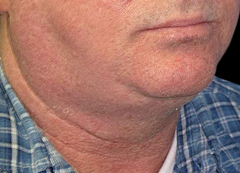 Exilis Before Picture Neck Male